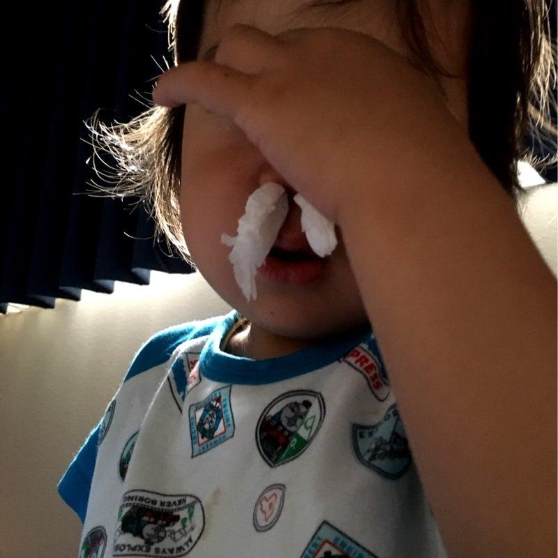 鼻血 なぜ 子供