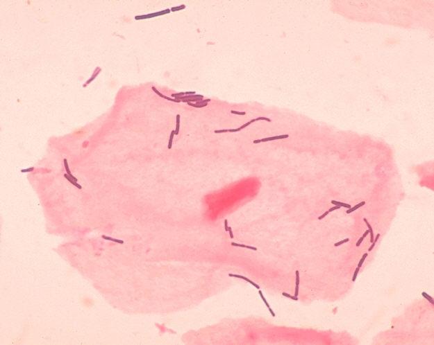 乳酸菌とは何でしょう?   Igeno...