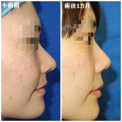 韓国鼻整形の修正☆鼻尖修正手術動画の記事に添付されている画像