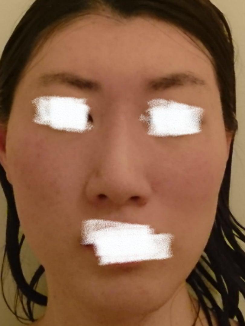 夏の赤ら顔対策の記事より