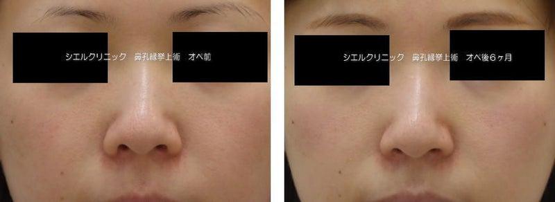 鼻孔縁挙上