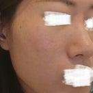 女性ホルモンとお肌の関係の記事より