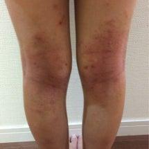 アレルギー予防の皮膚…