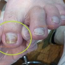 爪が巻いていて、長年痛みと友達です。痛くないようになりますか?(ORAシュパンゲの記事に添付されている画像