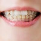 「顔の左右の歪みが変わったので驚いています」 歪みと歯との関係の記事より