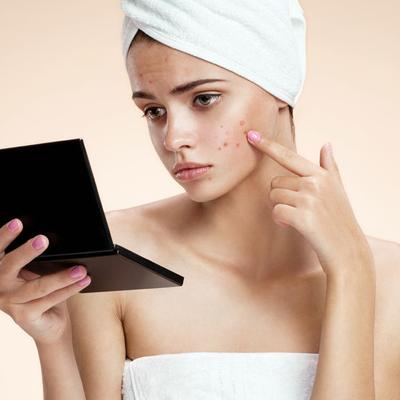 ニキビ肌荒れに「ニキビ用化粧品」は使うべきか?の記事に添付されている画像