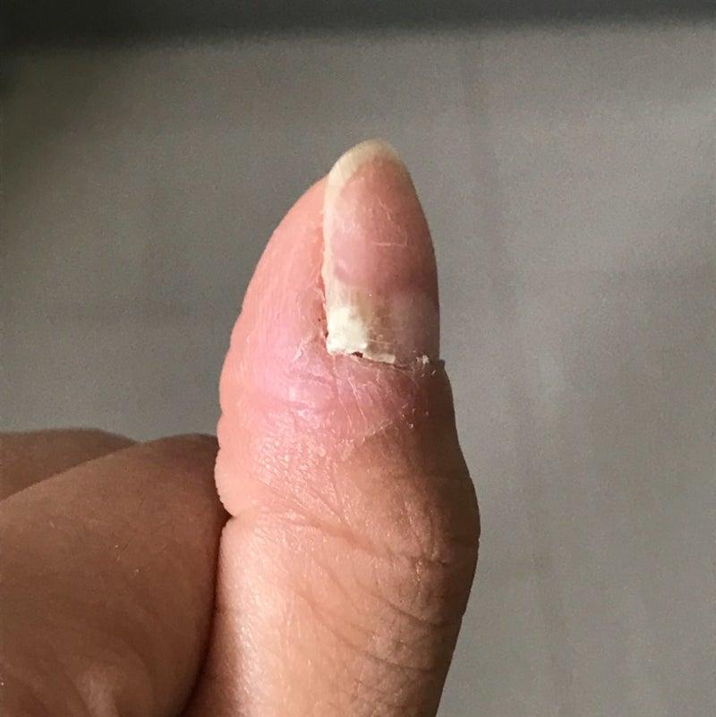 子供爪剥がれる
