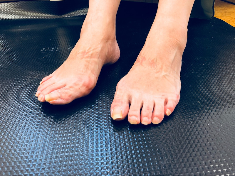 甲 足 むくみ 片足 の 足の甲の腫れ:医師が考える原因と受診の目安 症状辞典