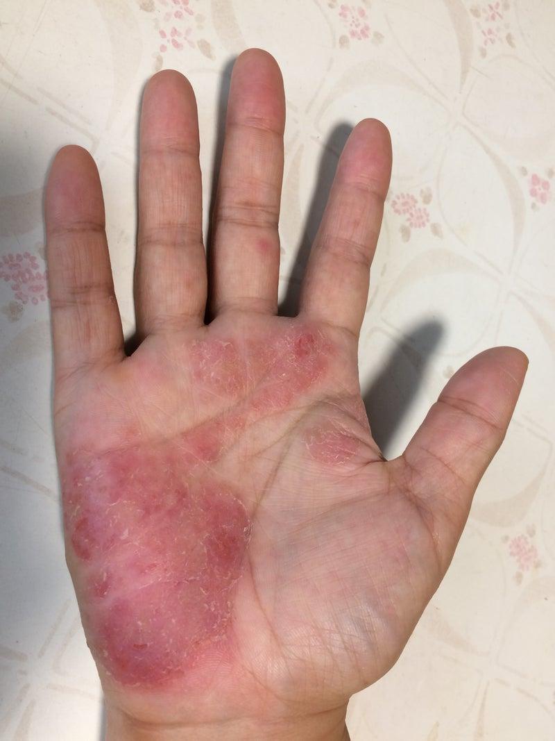 症 掌 蹠 膿疱