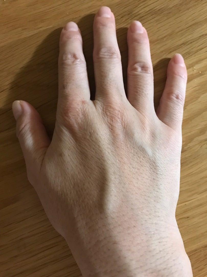 の 浮き 手 血管