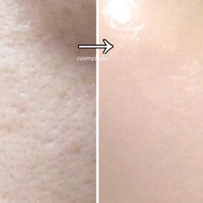 元々、お肌綺麗なんですか?⭐️の記事に添付されている画像