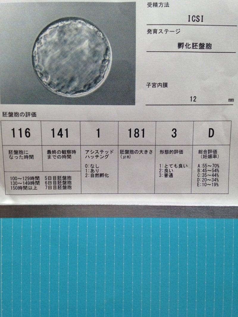 出産予定日 胚盤胞移植