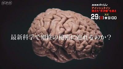 """アインシュタイン 消えた""""天才脳..."""
