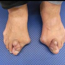 76.外反巻き爪の記事に添付されている画像