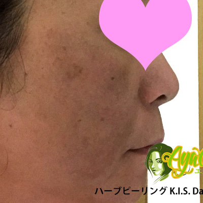 ハーブピーリング体験記(2) 当日夜、1、2日目 AyaCareエステ・東京の記事に添付されている画像
