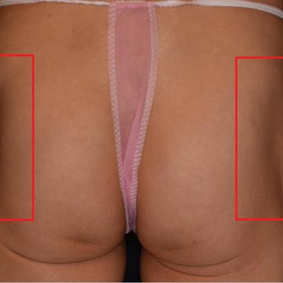 症例写真供覧:しぼんだお尻(ヒップ)をヒアルロン酸注入で「立体美尻」に!の記事に添付されている画像