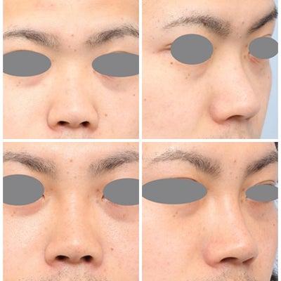 鼻の整形:鼻を高く・ヒアルロン酸注入の記事に添付されている画像