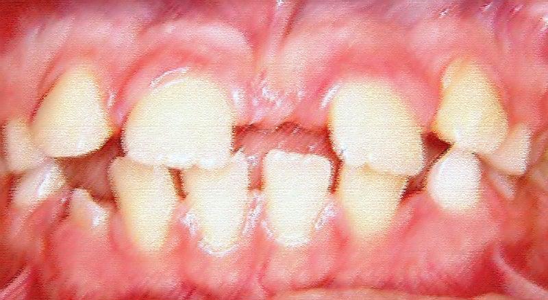醜いアヒルの子の時期の前歯とアヒルの歯 にしなか歯科クリニック Blog