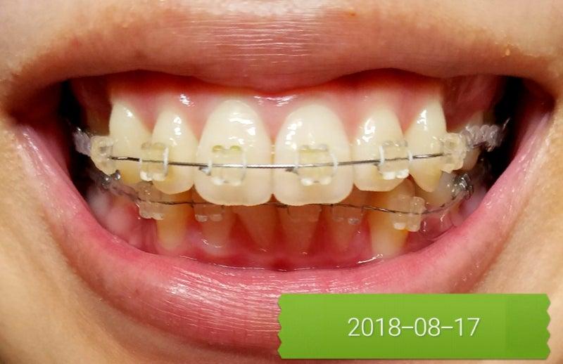 24歳 葉月の出っ歯 歯列矯正7回目調整日!