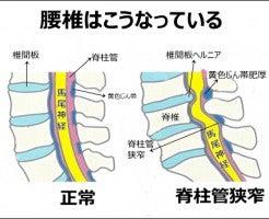 は 脊柱 症 管 狭窄 と
