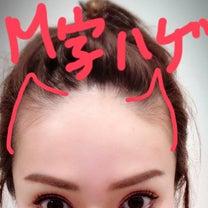 M字ハゲで顔の印象も大きさもかなり変わるの記事に添付されている画像