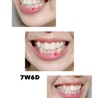 【8-1D】浜辺美波ちゃんの歯の記事に添付されている画像