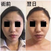 お顔の脂肪吸引とバッカルファット の実体験の記事に添付されている画像