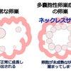 多嚢胞性卵巣症候群で血糖値が高めの方オススメ!(^O^)の画像