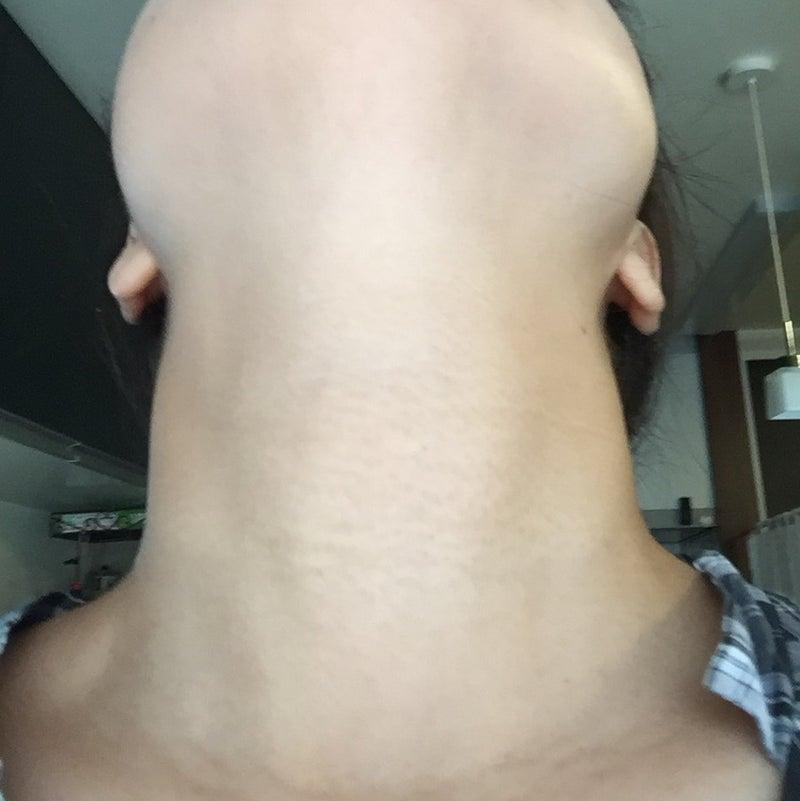 甲状腺 検査 費用
