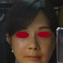 手術後1ヶ月の顔の記事に添付されている画像