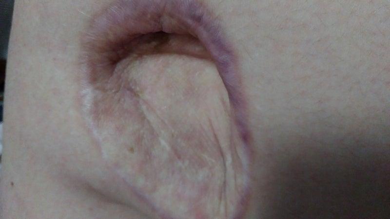 線維 腫 皮膚