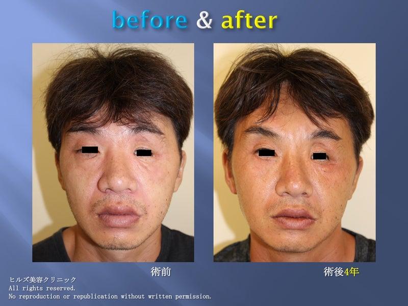 顔面多発外傷の再建