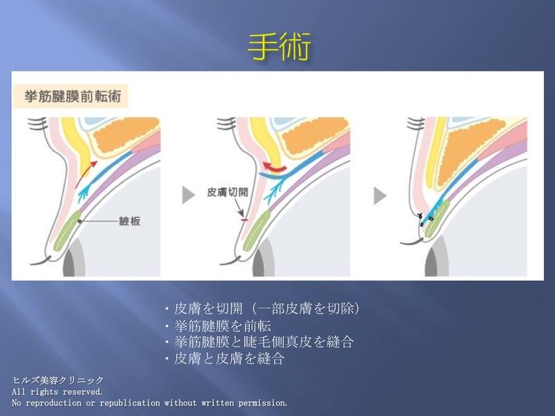 挙筋腱膜前転術