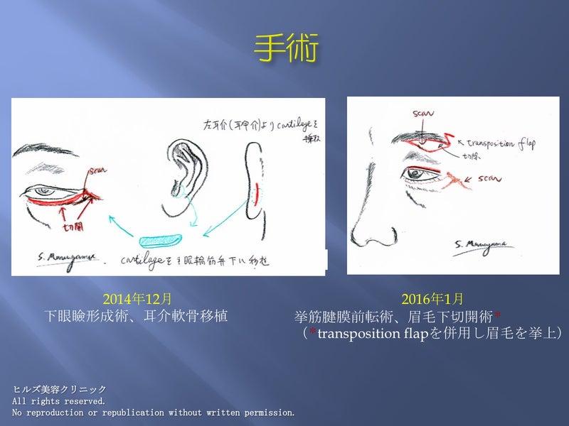 眼瞼再建術 耳介軟骨移植術