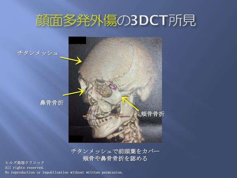 顔面多発外傷 3DCT所見 頬骨骨折 鼻骨骨折