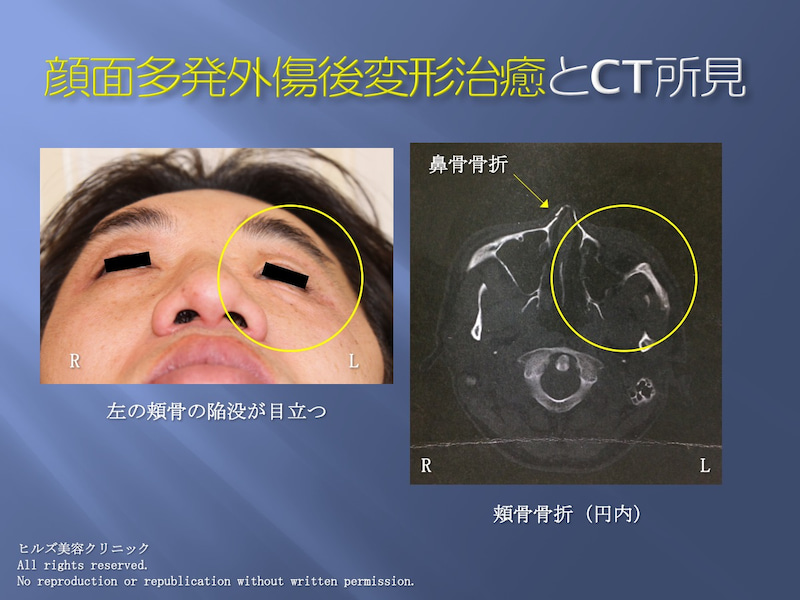 顔面多発外傷 CT所見