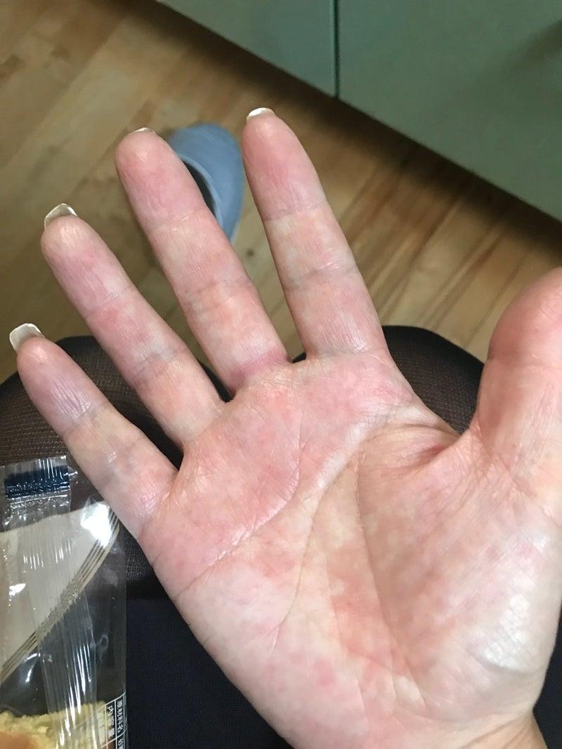 手の甲 湿疹 かゆい