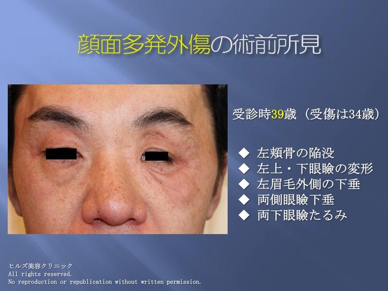顔面多発外傷