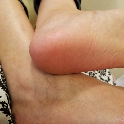 夏の疲れた足にの記事に添付されている画像