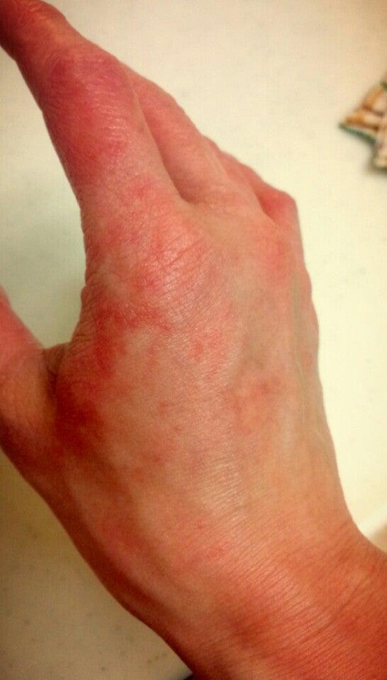 赤い 手の甲 手の甲に斑点ができる原因と対処法5選