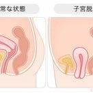 子宮脱・臓器脱の確率がヤバイことになってる。の記事より