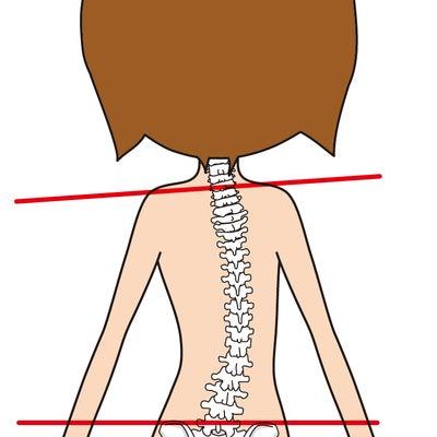 """側弯症がもどりました """"慢性疲労症候群の原因は?""""の記事に添付されている画像"""