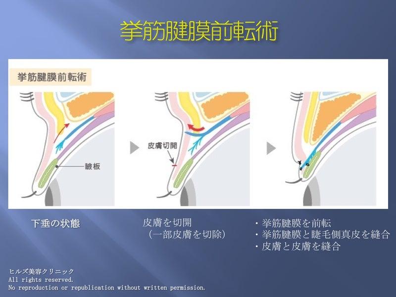 挙筋腱膜前転術(イラスト)