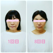 《beforeafter》小顔矯正モニターS様の記事に添付されている画像