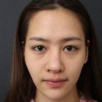 韓国美容外科・鼻・脂肪移植・額・頬・ほうれい線の記事に添付されている画像