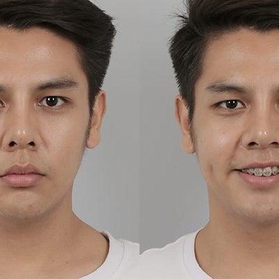id美容外科で輪郭手術を受けられた男性の方々のリアルセルフィ―をご紹介♪の記事に添付されている画像