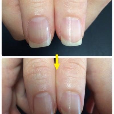 平面から立体的に見える爪に♡の記事に添付されている画像