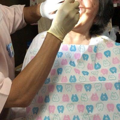 ありがたい訪問歯科医の記事に添付されている画像