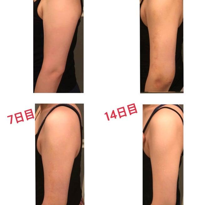 f117f232dd0ae 二の腕脂肪吸引 人気記事(一般)3ページ目|アメーバブログ(アメブロ)