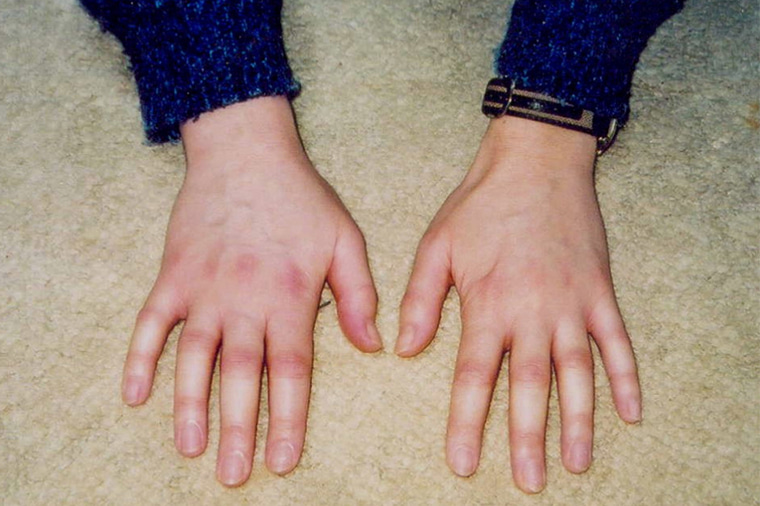 リウマチ 初期 症状 リウマチの症状とは おしえてリウマチ 中外製薬株式会社
